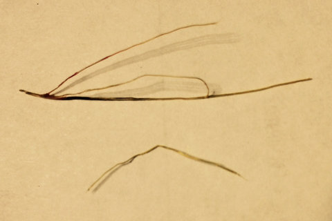 Nasal cactus thorn foreign body removed from turbinates